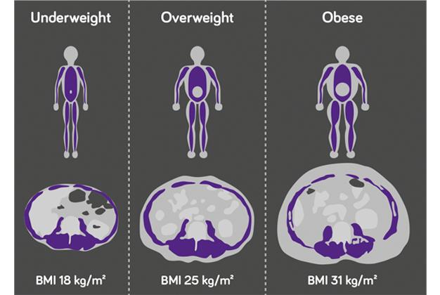 Syöpä ja lihasmassa BMIN vaikutus syöpähoidoissa